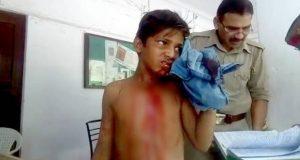 nti-news-injured-minor-boy-complaint-police-station-negligence-